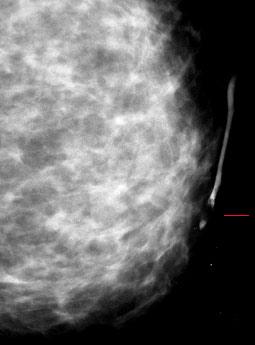 Венерические болезни и их причины